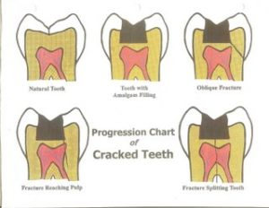 fractured-tooth01-300x232